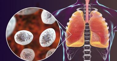 Pneumocystoza – objawy, rozpoznanie i leczenie