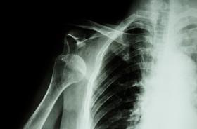 Zwichnięcie barku – przyczyny, objawy, leczenie, rehabilitacja wybitego barku