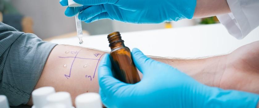 Testy alergiczne – wszystko, co alergik wiedzieć powinien