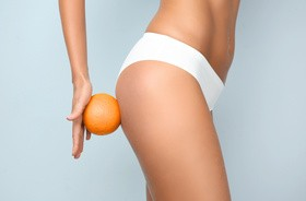 Defekt pomarańczowej skórki