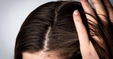Domowe sposoby na przetłuszczające się włosy - płukanki, maski, peelingi