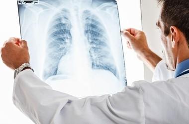 Zapalenie płuc – objawy i leczenie