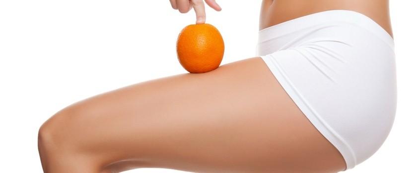 Cellulit, czyli efekt skórki pomarańczowej