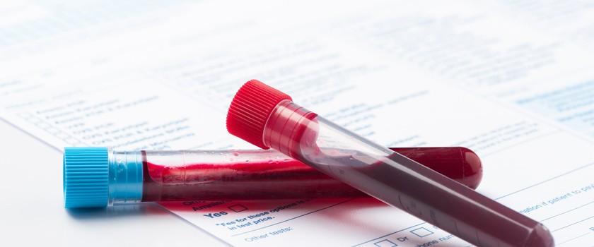 Kwasica metaboliczna – przyczyny, objawy i diagnostyka. Jak leczyć kwasicę metaboliczną?