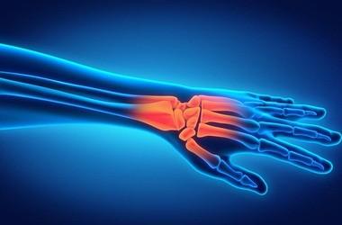Rezonans magnetyczny (MRI) nadgarstka – badanie, wskazania, przeciwwskazania, refundacja, cena i skierowanie na prześwietlenie