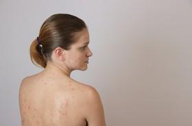 Trądzik młodzieńczy (pospolity) – przyczyny występowania i sposób leczenia