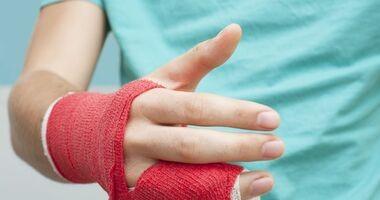 Leczenie złamania kości paliczków