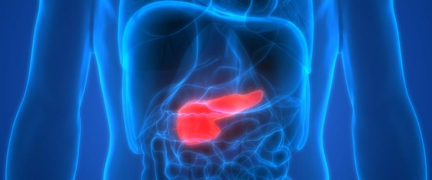 Nowa szansa dla chorych na raka trzustki