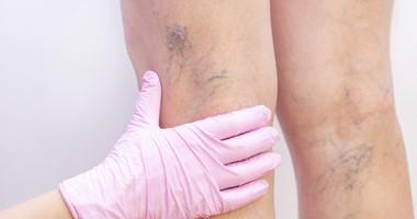 Pajączki na nogach – przyczyny, zapobieganie i leczenie. Zamykanie naczynek na nogach