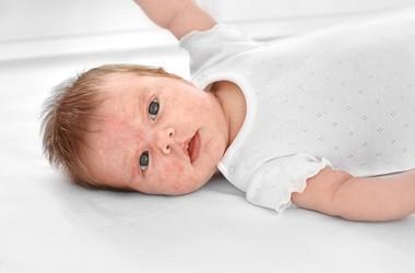 Egzema u dzieci i niemowląt – jak ją rozpoznać?