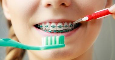 Jak prawidłowo dbać o zęby w aparacie ortodontycznym?