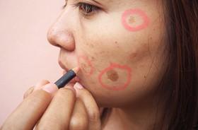 Przebarwienia i plamy na twarzy – przyczyny i sposoby na pozbycie się przebarwień na skórze