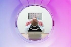 Tomografia komputerowa (TK) głowy – wskazania do badania, interpretacja wyników prześwietlenia