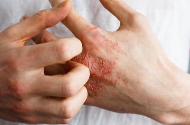 Egzema – przyczyny i objawy. Leczenie egzemy na dłoniach i twarzy. Które preparaty wybrać, a których unikać?