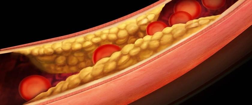 Miażdżyca – przyczyny, objawy, leczenie. Jak jej zapobiegać?