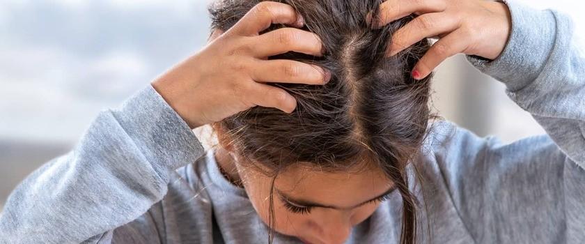 Łupież u dziecka – przyczyny i leczenie. Jakie preparaty przeciwłupieżowe stosować u dzieci?