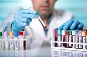 Jongram – badanie poziomu elektrolitów we krwi. Normy, wskazania, interpretacja wyników jonogramu