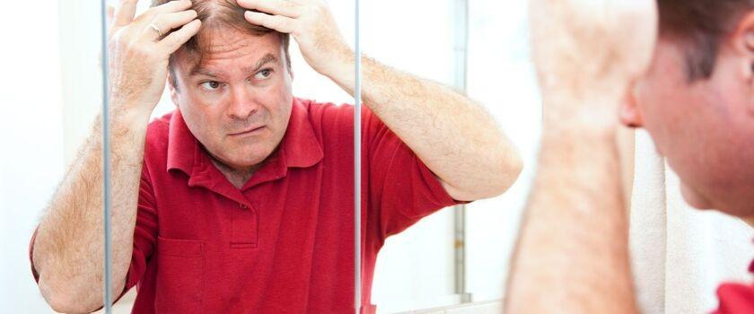 Najnowsza metoda leczenia łysienia plackowatego