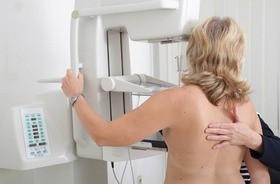 Nowoczesna mammografia 3D – jak wygląda badanie z wykorzystaniem cyfrowej tomosyntezy?
