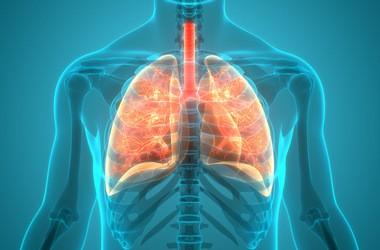 Zapalenie płuc – przyczyny, objawy, leczenie, powikłania u dzieci i u dorosłych