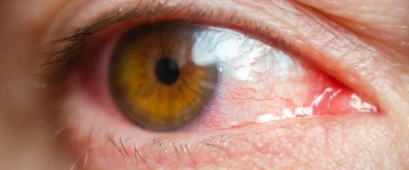Przekrwione oczy u dzieci i dorosłych – co mogą oznaczać? Co stosować na zaczerwienione oko?