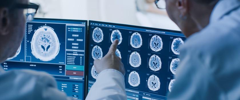 Nowy test z krwi pomoże wykryć raka mózgu