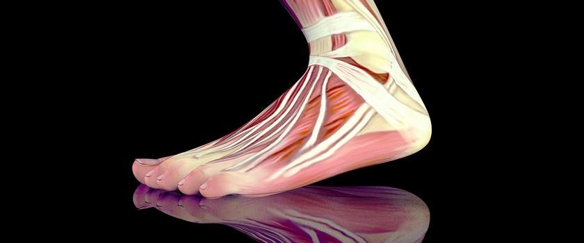 Zapalenie rozcięgna podeszwowego – przyczyny, objawy, leczenie, ćwiczenia