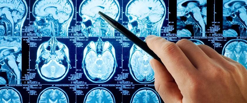 Tętniaki mózgu są częstsze u kobiet, które palą papierosy
