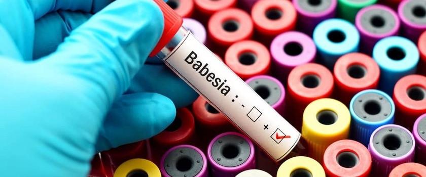 Babeszjoza – przyczyny, objawy, diagnostyka, leczenie