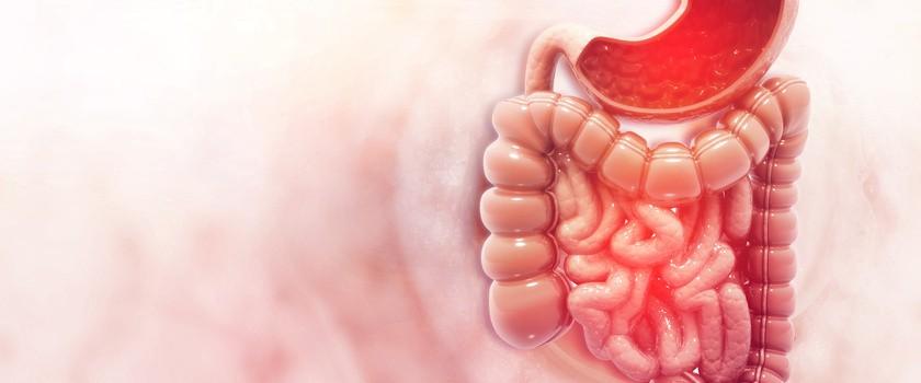 Grzybica (kandydoza) układu pokarmowego – przyczyny, objawy, leczenie i profilaktyka