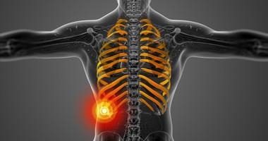 Ból żeber – przyczyny, diagnostyka, leczenie bólu żeber z lewej i prawej strony