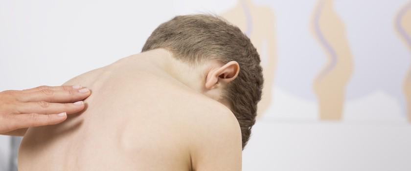 Skolioza – przyczyny, objawy, leczenie bocznego skrzywienia kręgosłupa. Ćwiczenia na skoliozę