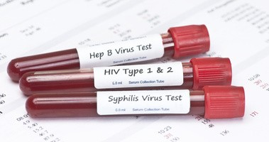 Odpowiedzialny seks — o profilaktyce chorób wenerycznych