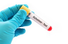 Test wykryje Alzheimera nawet z 20–letnim wyprzedzeniem