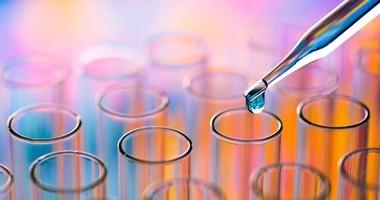 Kwas moczowy w surowicy i moczu – normy, podwyższony, zalecenia