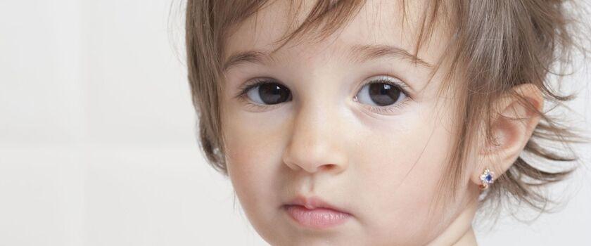 Kolczyki u dzieci mogą powodować alergie