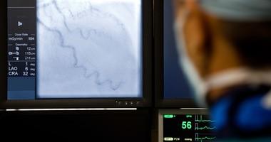 Angiografia tętnic wieńcowych — sprawdź, jak przebiega koronarografia i jak się do niej przygotować