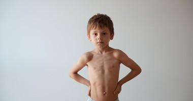 Kurza klatka piersiowa – przyczyny, objawy, leczenie, ćwiczenia