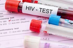 Liczba wykrytych zakażeń HIV rośnie