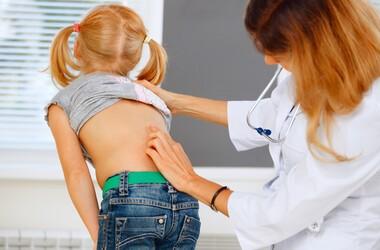 Skrzywienie kręgosłupa – rodzaje, przyczyny, leczenie, rehabilitacja