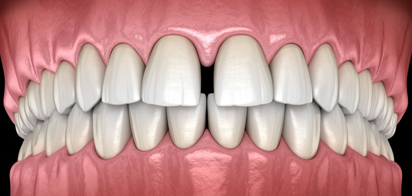 Diastema – czemu powstaje?