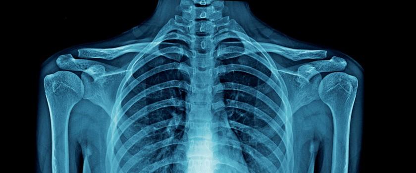 Sklerotyzacja – czym jest sklerotyzacja kości? Leczenie i rehabilitacja w chorobach przebiegających ze sklerotyzacją podchrzęsną