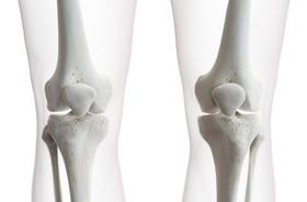 Rzepka – budowa, funkcje, urazy rzepki w kolanie