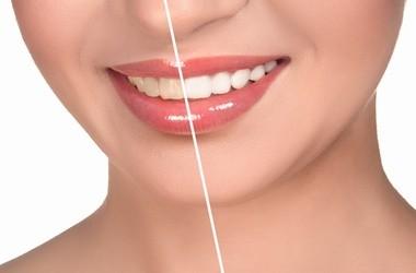 Wybielanie zębów - przegląd preparatów aptecznych