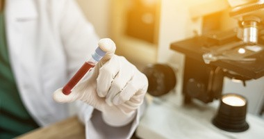 Jakie badania z krwi są najpopularniejsze? Które warto wykonywać regularnie?