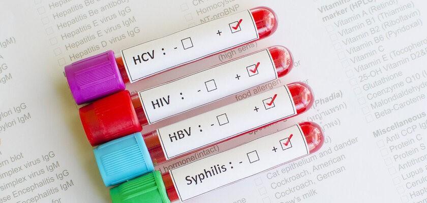 Badania na choroby weneryczne – jakie są rodzaje badań na choroby przenoszone drogą płciową i kiedy je wykonać?