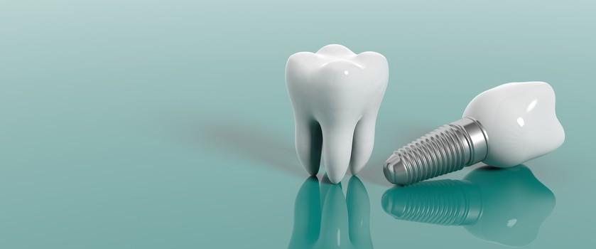 Implant zęba — jak wygląda wstawianie sztucznego zęba?
