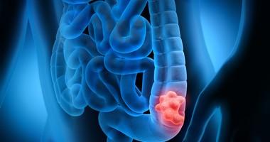 Gruczolak jelita grubego – przyczyny, objawy, leczenie, rokowania, dieta