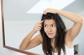 Sucha skóra głowy – przyczyny przesuszonej skóry głowy. Jakie są sposoby na nawilżenie skóry głowy?