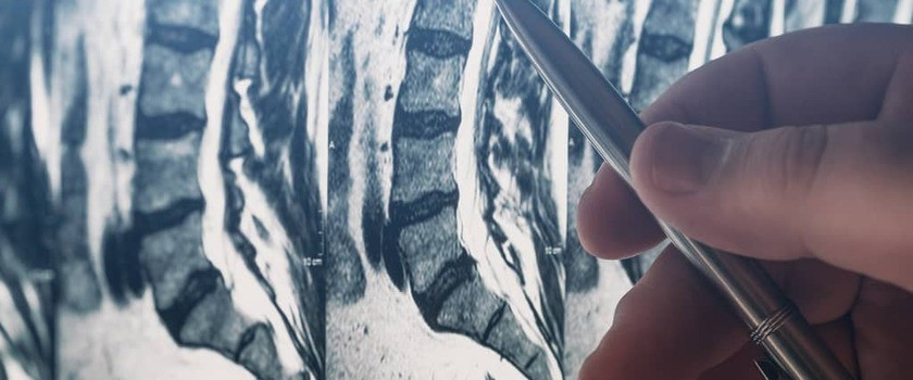 Tomografia komputerowa kręgosłupa – jak wygląda badanie? Wskazania, cena badania